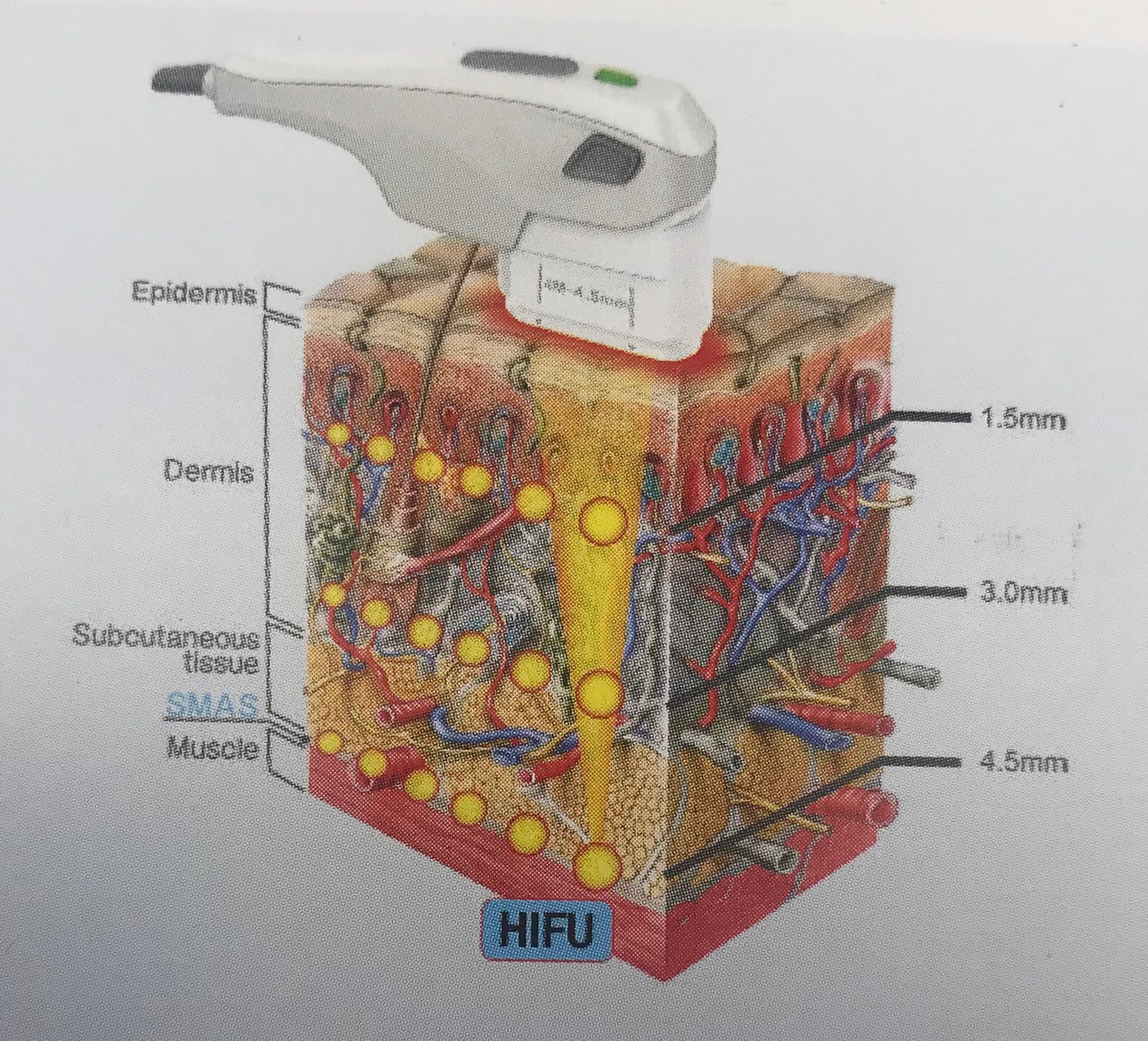HIFU – Flawless Aesthetics