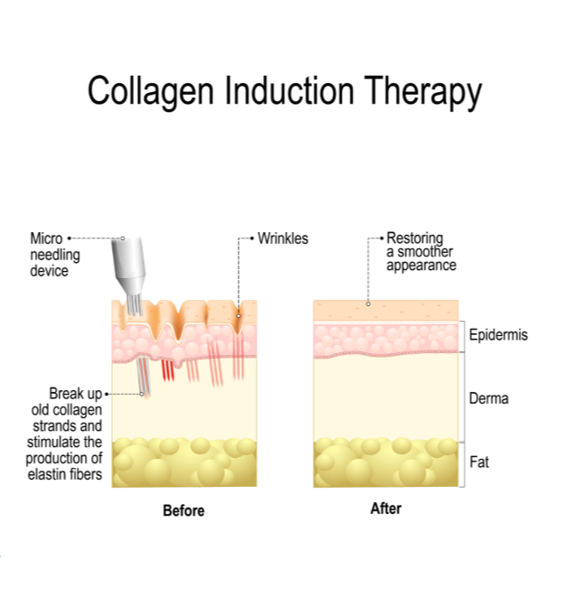 Collagen induction therapy (microneedling) is surgical treatment for removing wrinkles.